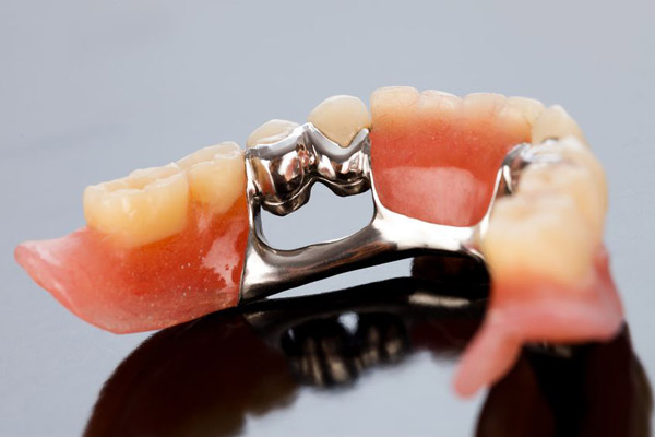 Inexpensive Implant Dentures