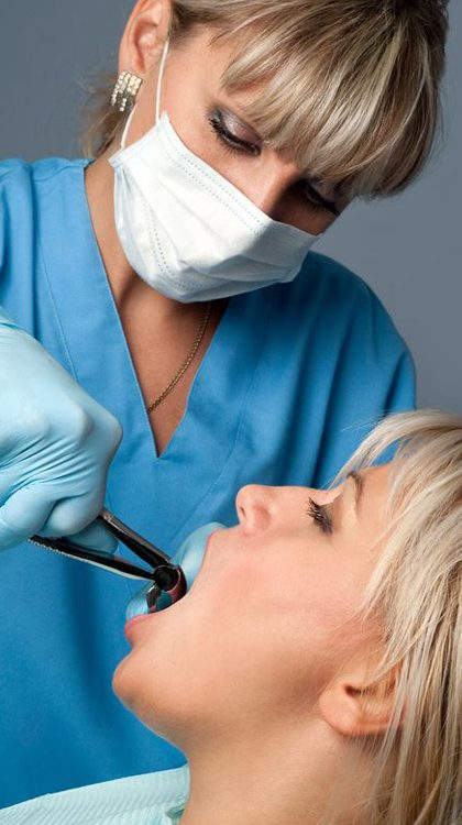 Surgery Tooth Extraction in Modesto City-2