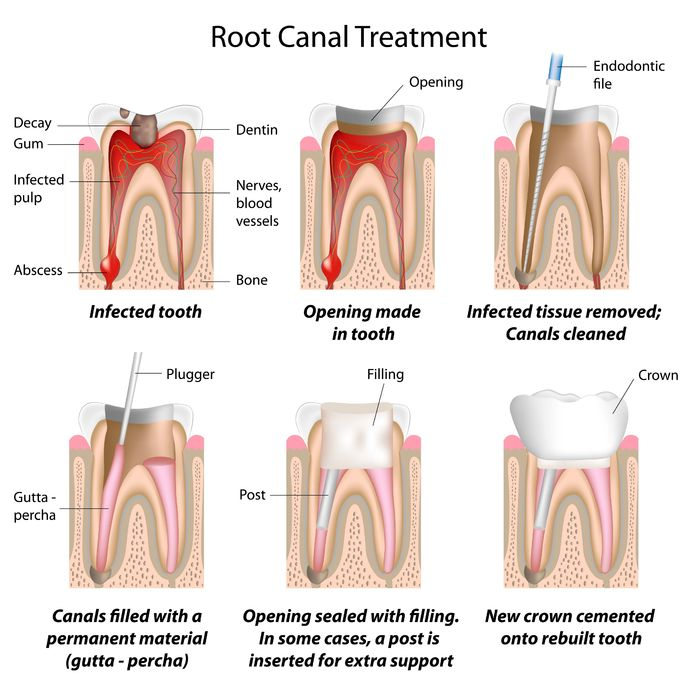 Deep Root Canal Treatment-1