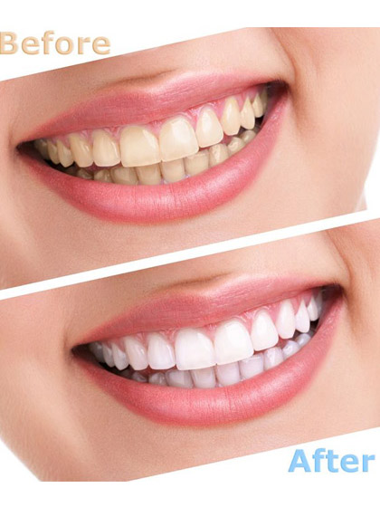 Affordable Teeth Whitening Treatment
