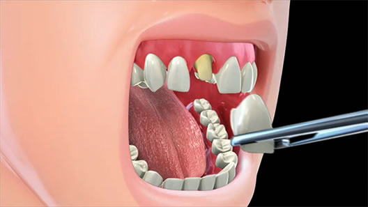 Permanent-dental-crown-treatment