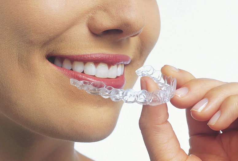 invisalign-braces-for-teeth