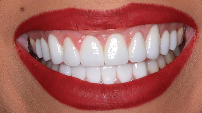 modesto-invisalign-dentist
