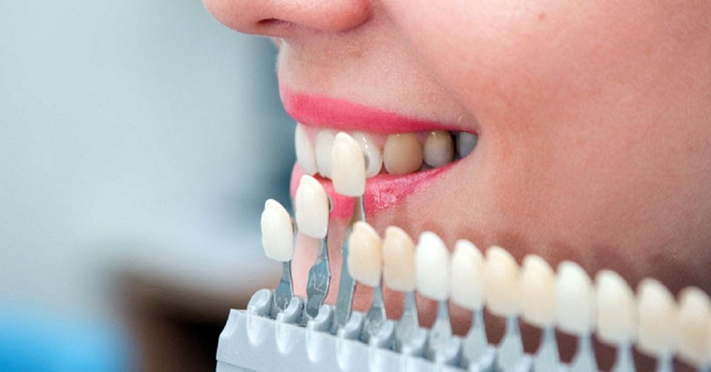 Veneer-treatment-for-teeth