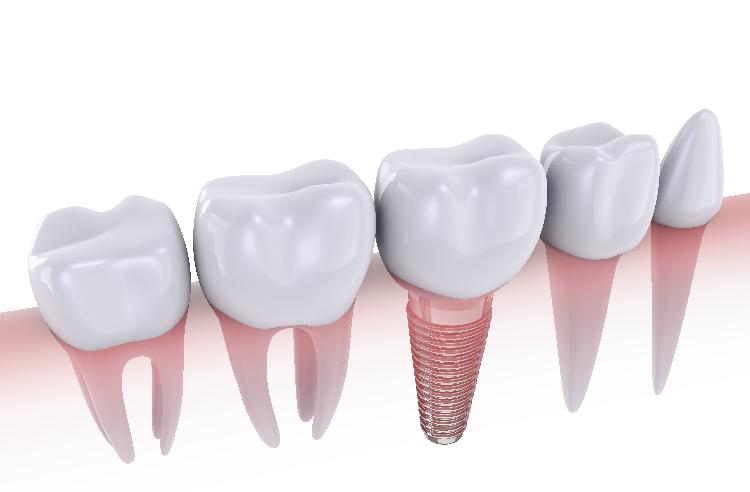Dental implant treatment specialist modesto