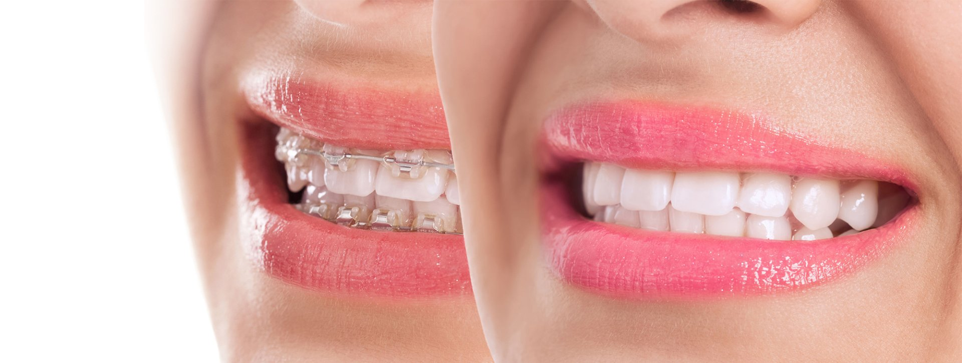 Invisalign are considered better than metal braces