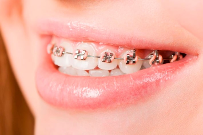 Modesto Invisalign Dentist