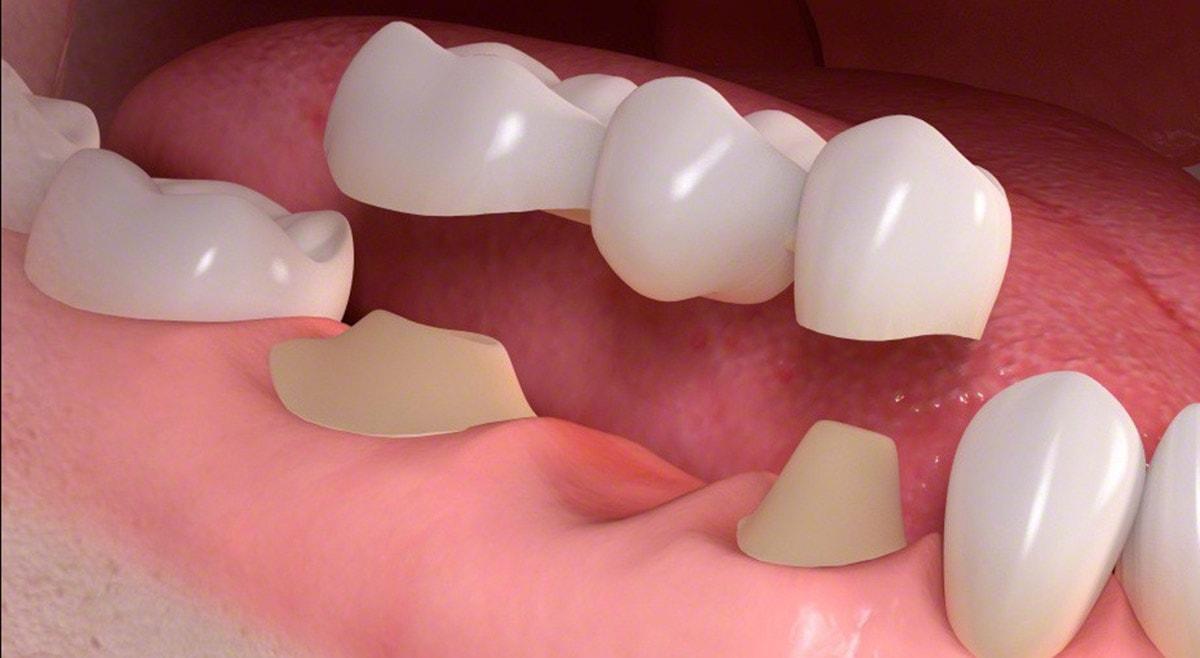• Traditional dental bridge treatment