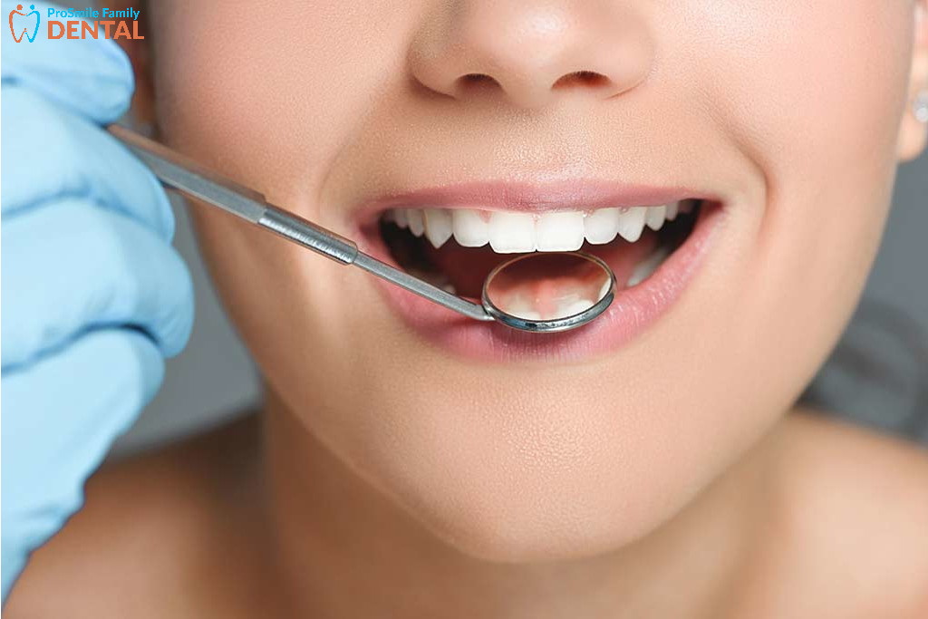 affordable deep teeth cleaning modesto