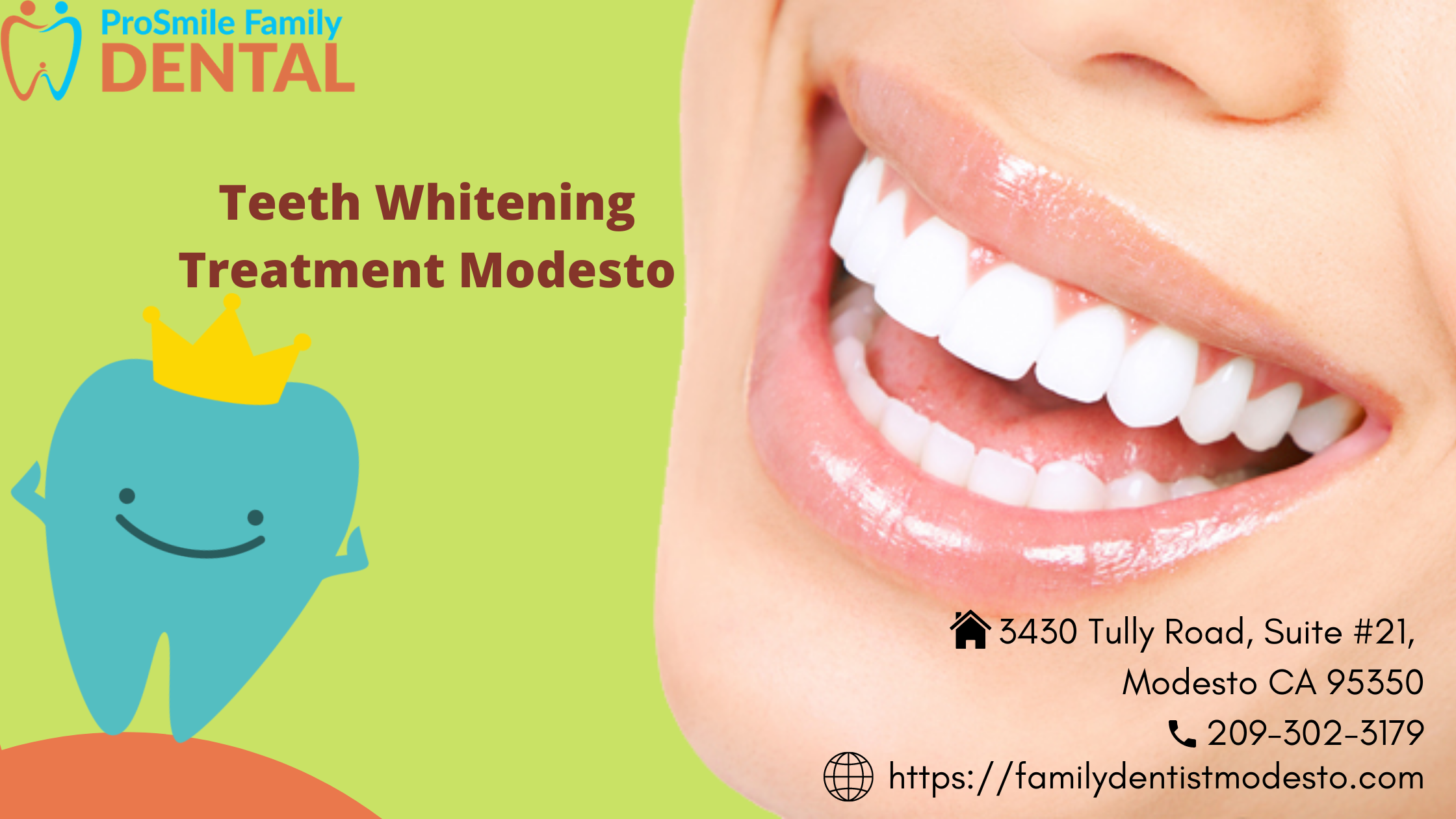 teeth whitening treatment modesto