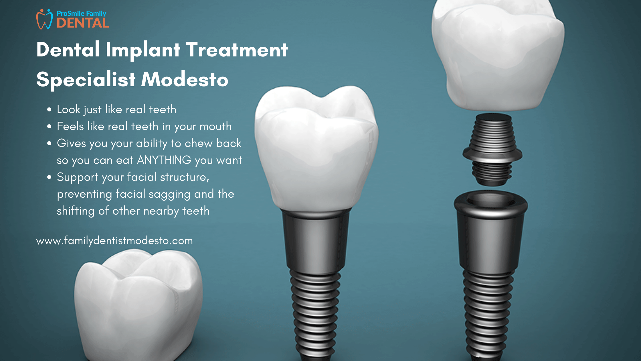Implant dentist modesto