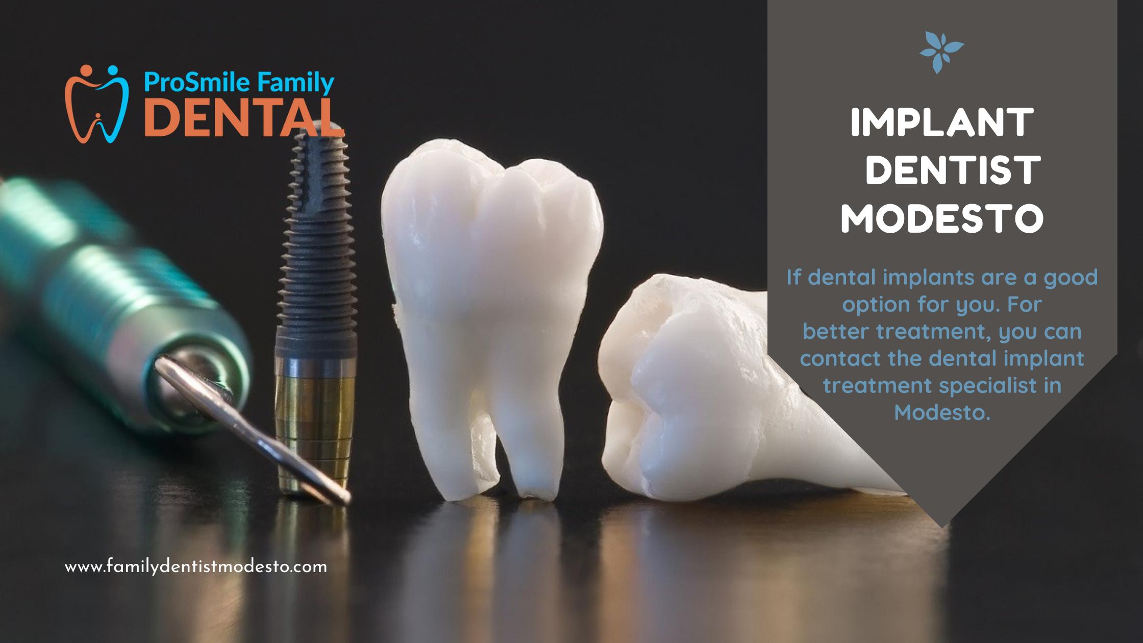 Implant Dentist Modesto | Dentist Modesto