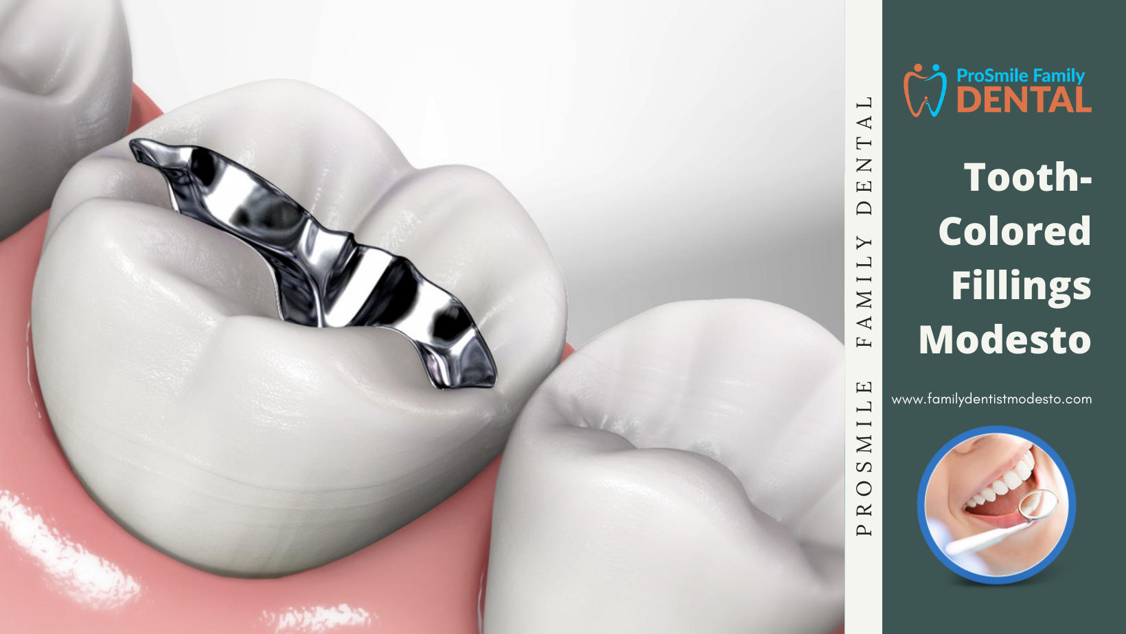 Tooth-Colored Fillings Modesto